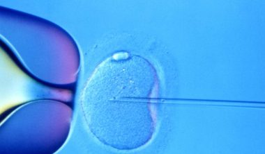 ICSI used in IVF for male infertility instead of BTA after BTL